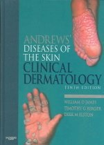 Andrews Diseases of the Skin: Clinical Dermatology (Hardcover/ 10th Ed.)