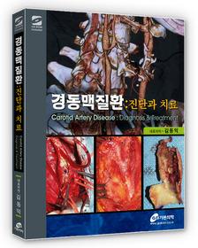 경동맥질환 - 진단과 치료
