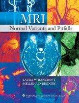 MRI Normal Variants and Pitfalls (Hardcover)