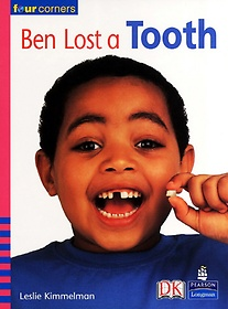 BEN LOST A TOOTH